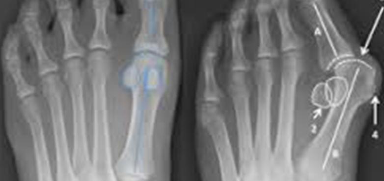 العملية-الجراحية-لعلاج-ورم-إبهام-القدم