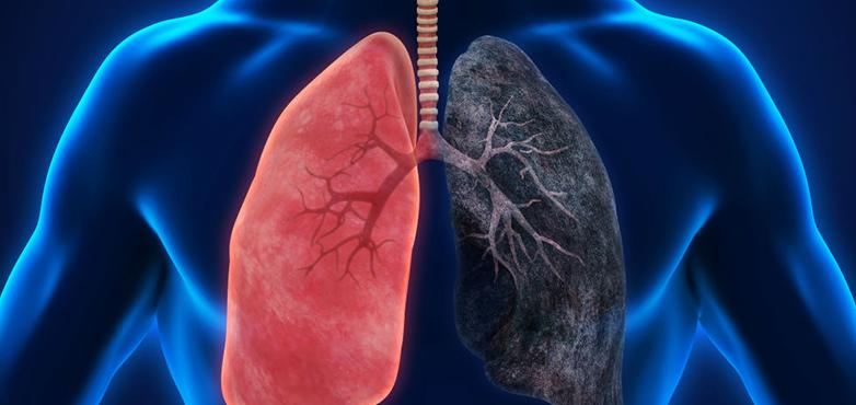 برنامج-علاج-سرطان-الرئة