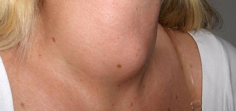 سرطان-الرأس-والعنق
