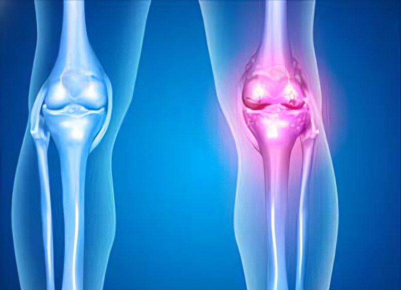 استبدال الركبة